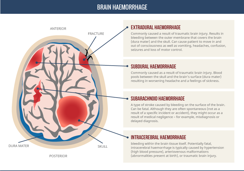Intracranial Haemorrhage Types, signs and symptoms