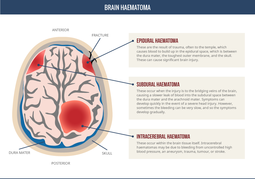 Brain Injury Haematoma Diagram