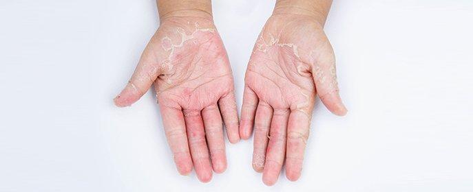 Industrial Diseases and Injuries | Mesothelioma, Asbestos