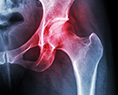 Hip Replacement Compensation Claims